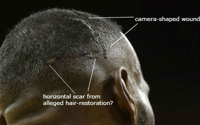 Lebron James head wound