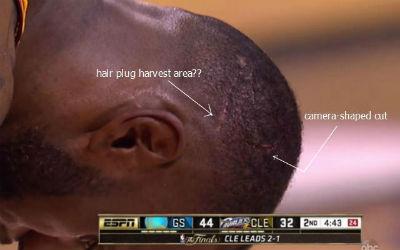 LeBron James head wound